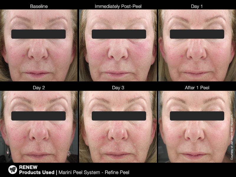 What is a skin peel? JanMarini Skin Peel Results